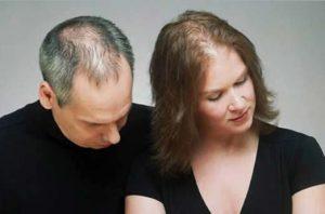 Hårtransplantasjon er det beste løsningen for deg med hårtap