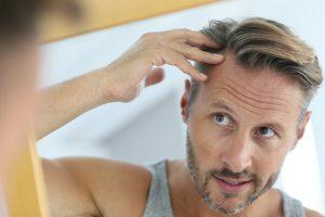 Ting du må vurdere før du planlegger en hårtransplantasjon